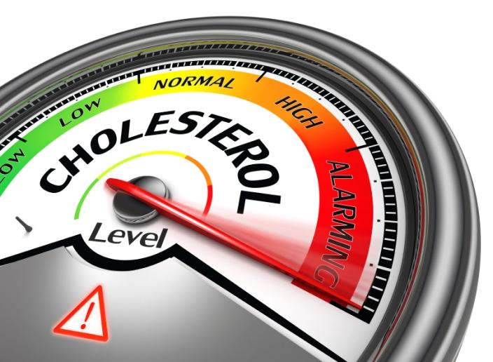 cholesterol level conceptual
